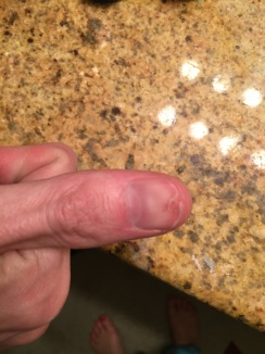 Ozone bit Fletcher two weeks ago. THROUGH his nailbed. We were thankful he didn't need an ER visit.