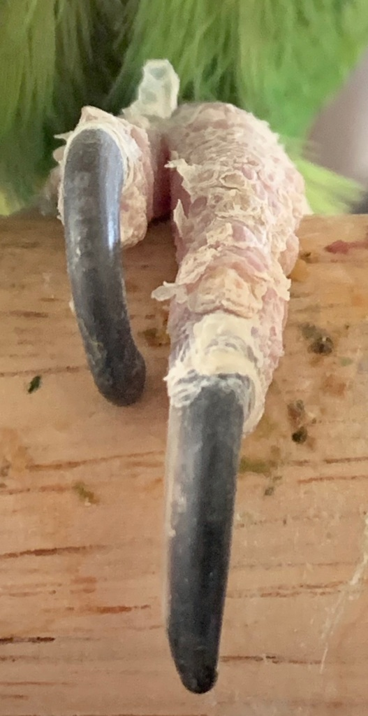 Image shows peeling skin off of an Amazon parrot's toes.